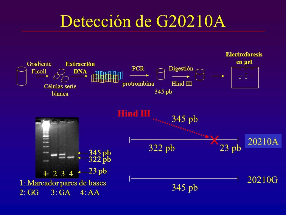 Detección de G20210A Gradiente Ficoll Células serie blanca Extracción DNA 1: Marcador pares de bases 2: GG 3: GA 4: AA 1 2 3 4 345 pb 322 pb 23 pb 322