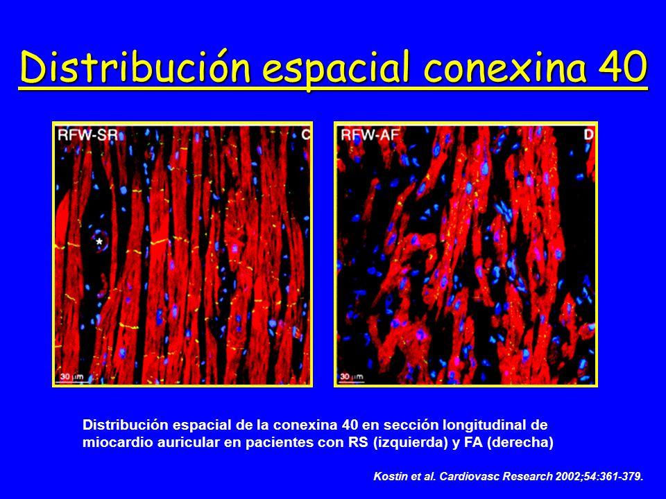 Distribución espacial de la conexina 40 en sección longitudinal de miocardio auricular en pacientes con RS (izquierda) y FA (derecha) Distribución esp