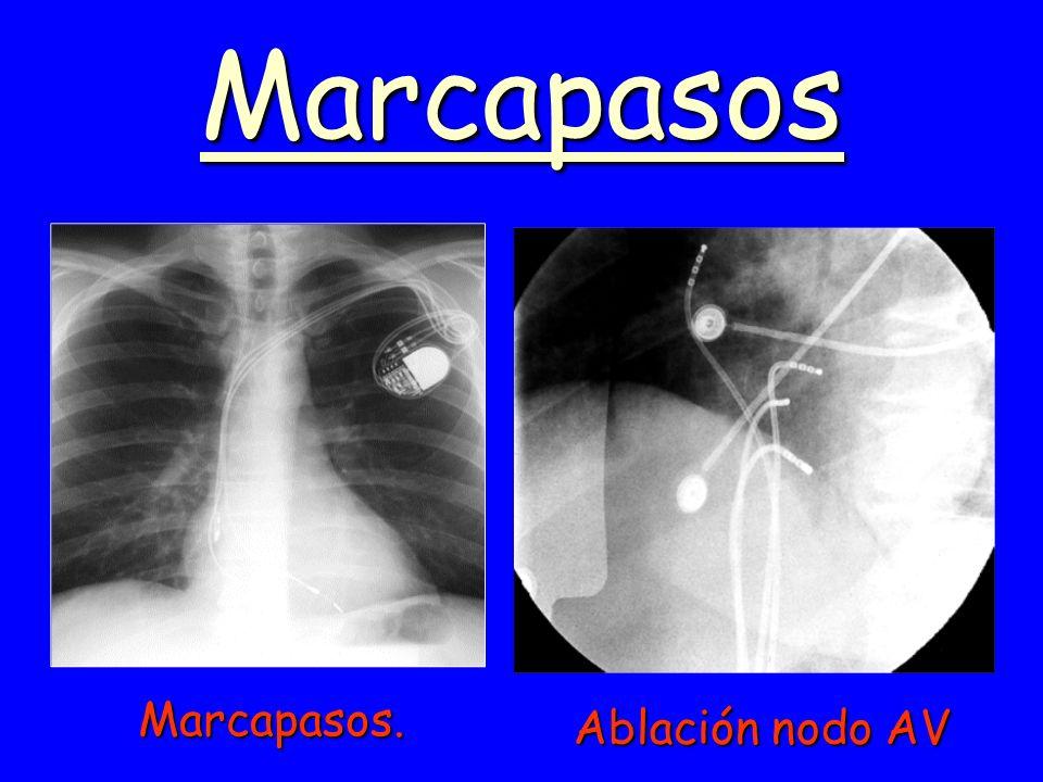 Marcapasos Ablación nodo AV Marcapasos.