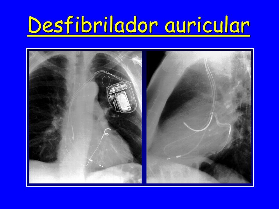 Desfibrilador auricular
