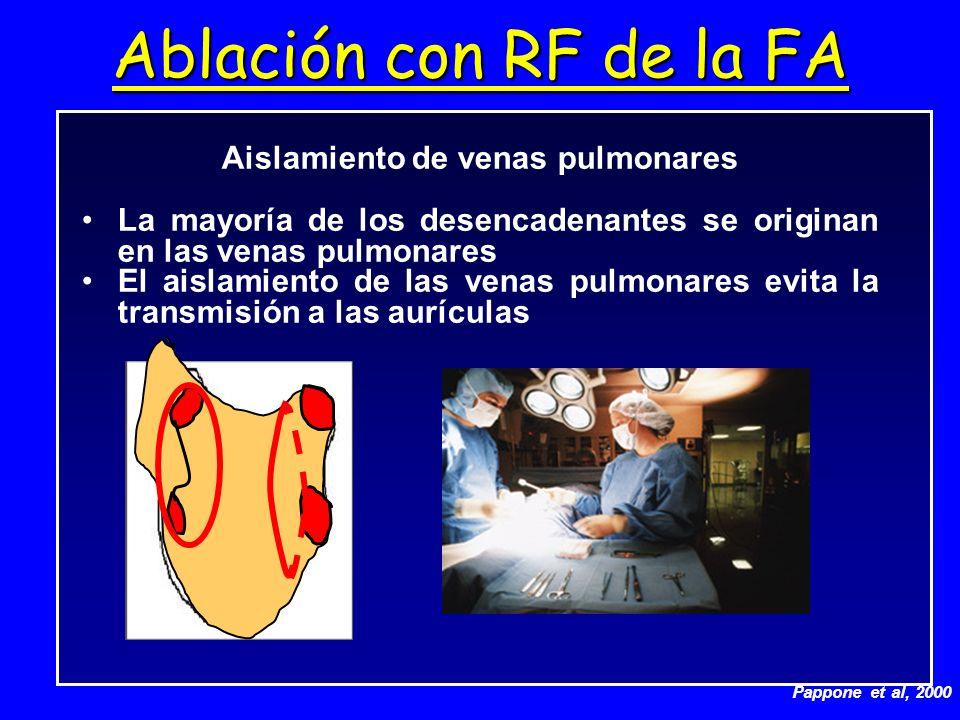 Ablación con RF de la FA Aislamiento de venas pulmonares La mayoría de los desencadenantes se originan en las venas pulmonares El aislamiento de las v