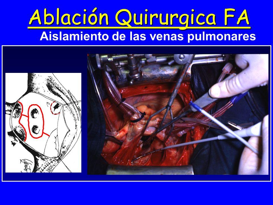 Ablación Quirurgica FA Aislamiento de las venas pulmonares