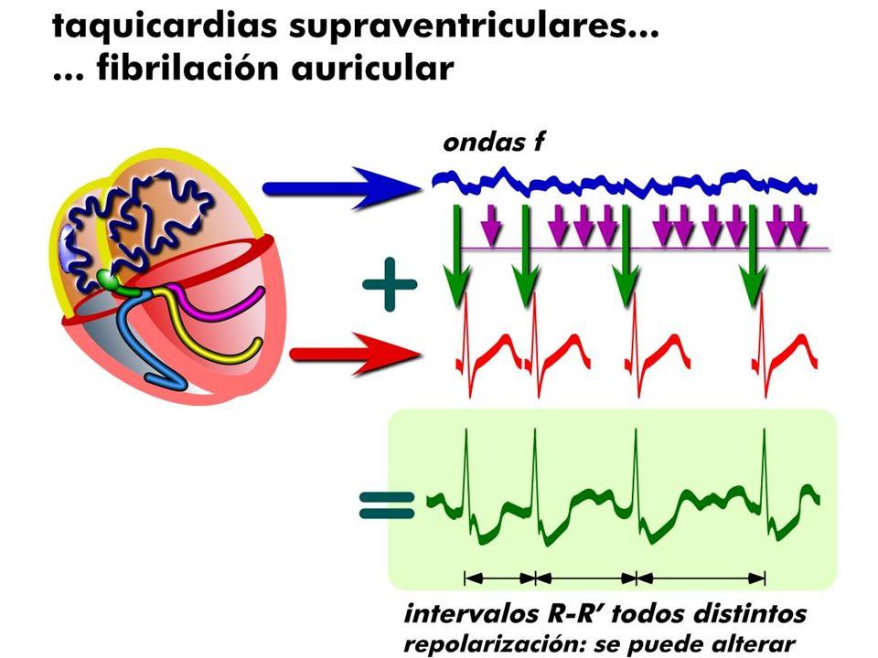 DIAGNÓSTICO ECG Ausencia de actividad auricular Intervalos R-R variables.