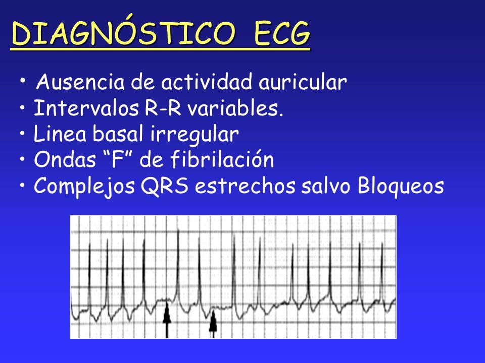 DIAGNÓSTICO ECG Ausencia de actividad auricular Intervalos R-R variables. Linea basal irregular Ondas F de fibrilación Complejos QRS estrechos salvo B