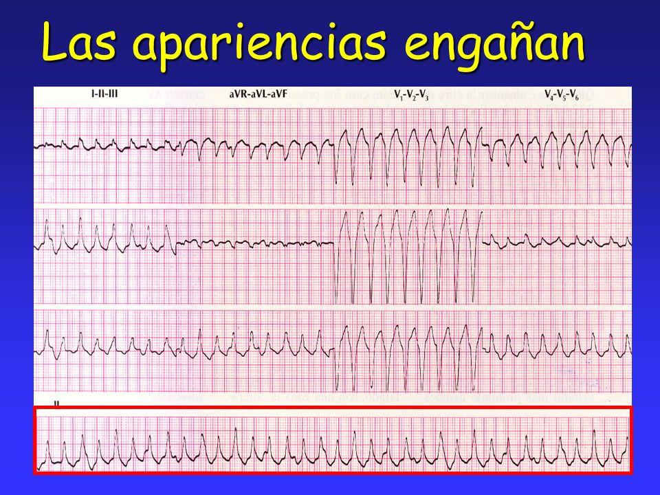 FA asociada a cardiopatía estructural Enfermedad valvularEnfermedad valvular Cardiopatía hipertensiva (HVI)Cardiopatía hipertensiva (HVI) Cardiopatía isquémicaCardiopatía isquémica Miocardiopatía dilatadaMiocardiopatía dilatada Miocardiopatía restrictiva (Amiloidosis, Hemocromatosis,Fibrosis endomiocárdica)Miocardiopatía restrictiva (Amiloidosis, Hemocromatosis,Fibrosis endomiocárdica) Enfermedad pericárdicaEnfermedad pericárdica Masas intracardíacasMasas intracardíacas Disfunción nódulo sinusalDisfunción nódulo sinusal Cardiopatía congénitaCardiopatía congénita Calcificación del anillo mitralCalcificación del anillo mitral Cor pulmonaleCor pulmonale HipoxiaHipoxia ACC/AHA ESC Practice guidelines.