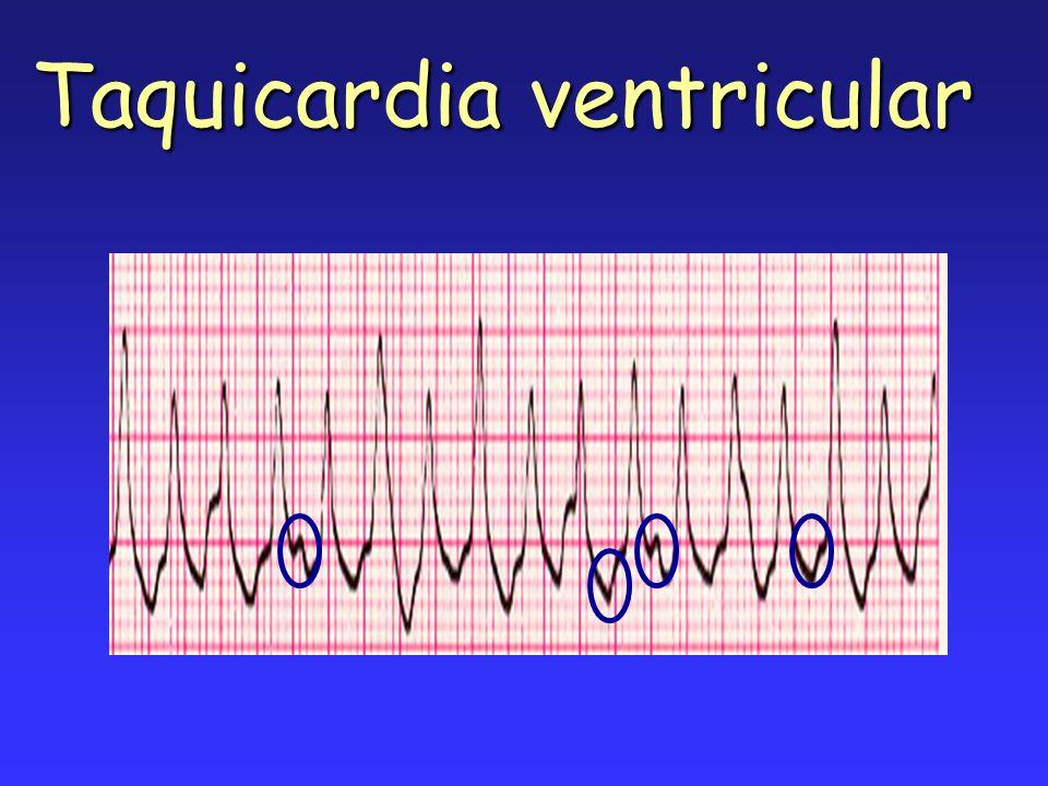 Riesgo de recidiva Marcadores ineficacia Sopesar posibilidades de eficacia / recidiva ¿Cardioversión.