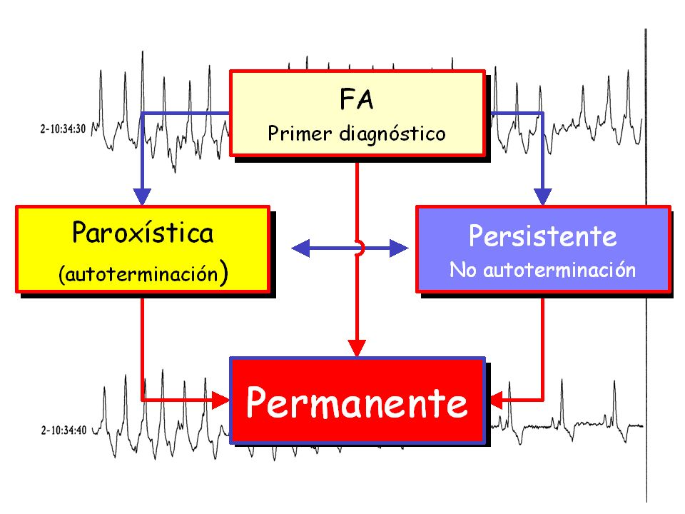 HTA y Fibrilación auricular La Hipertensión arterial es el determinante más prevalente de la fibrilación auricular.
