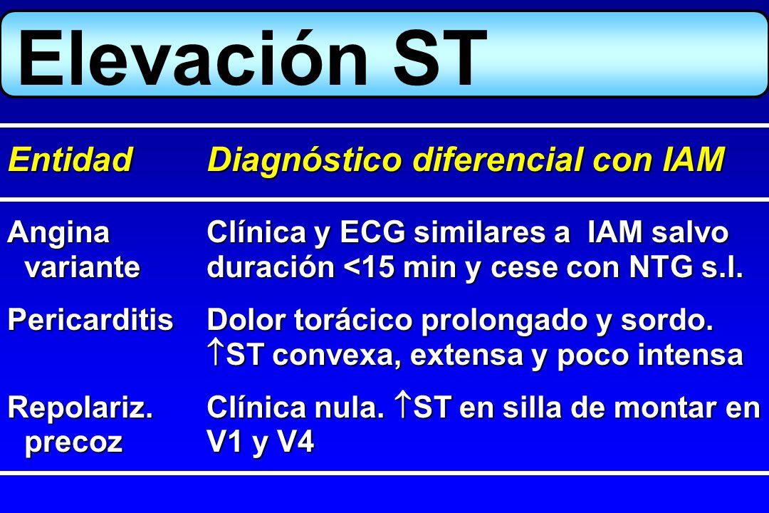 Angina Clínica y ECG similares a IAM salvo varianteduración <15 min y cese con NTG s.l. varianteduración <15 min y cese con NTG s.l. PericarditisDolor