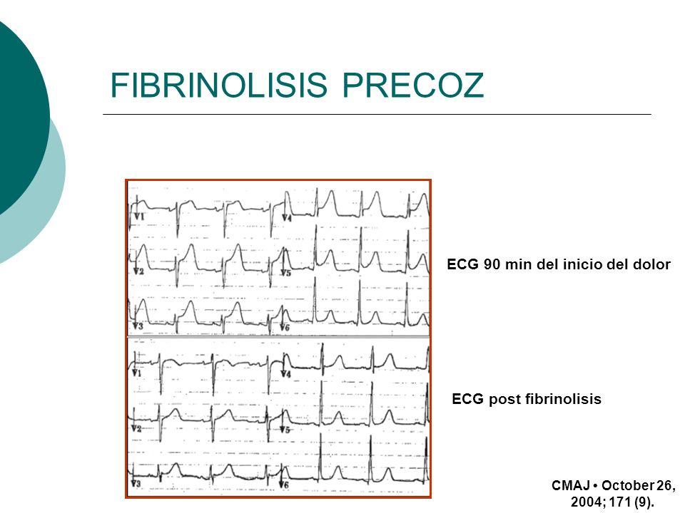 FIBRINOLISIS PRECOZ CMAJ October 26, 2004; 171 (9). ECG 90 min del inicio del dolor ECG post fibrinolisis