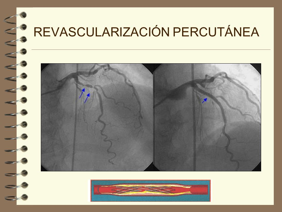 REVASCULARIZACIÓN QUIRÚRGICA 4 VASOS EMPLEADOS COMO INJERTO 4 Arteria mamaria interna 4 Arteria radial 4 Vena safena