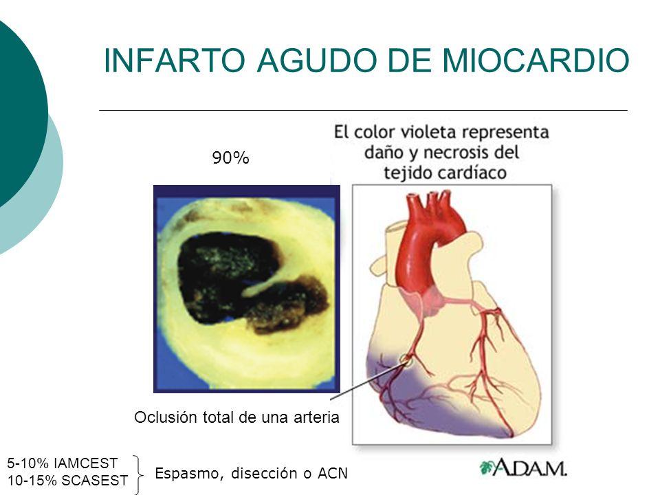 INFARTO AGUDO DE MIOCARDIO Oclusión total de una arteria 5-10% IAMCEST 10-15% SCASEST Espasmo, disección o ACN 90%