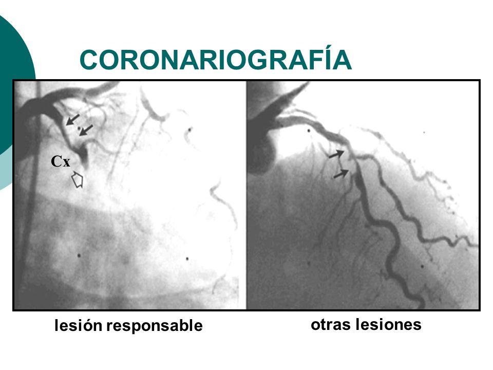 CORONARIOGRAFÍA lesión responsable Cx otras lesiones