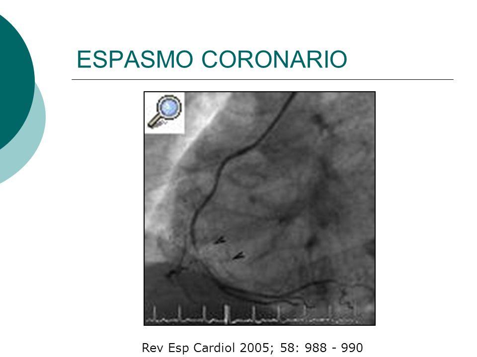 Systolic blood pressure (mm Hg) <8063 80–9958 100–11947 120–13937 140–15926 160–19911 >2000 CALCULO DEL RIESGO (GRACE)
