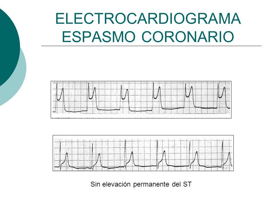 ELECTROCARDIOGRAMA ESPASMO CORONARIO Sin elevación permanente del ST