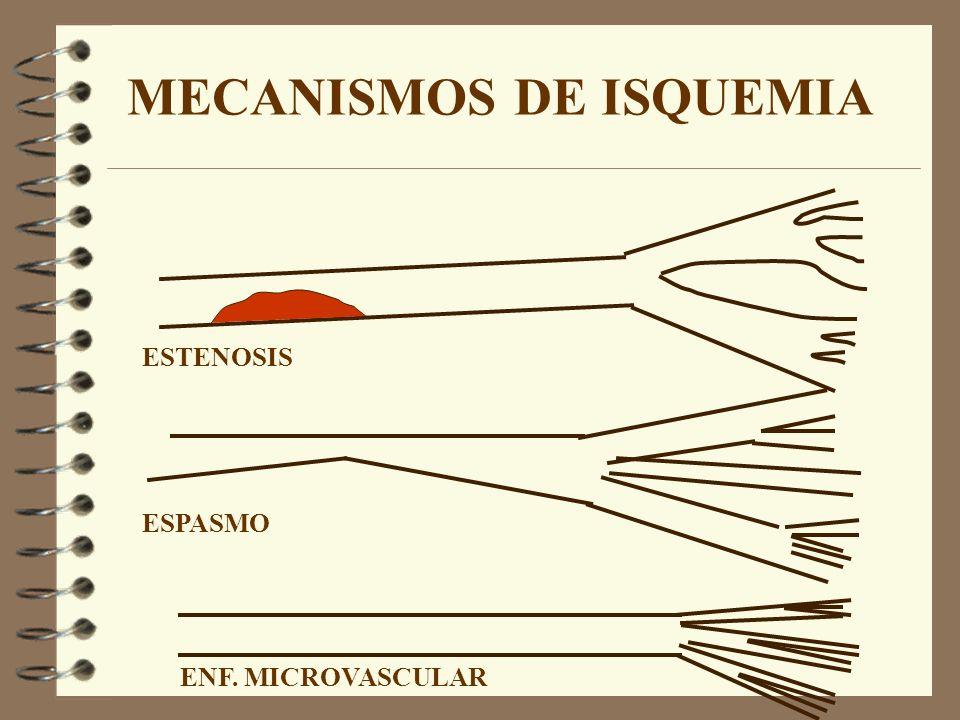 MECANISMOS DE ISQUEMIA ESTENOSIS ESPASMO ENF. MICROVASCULAR