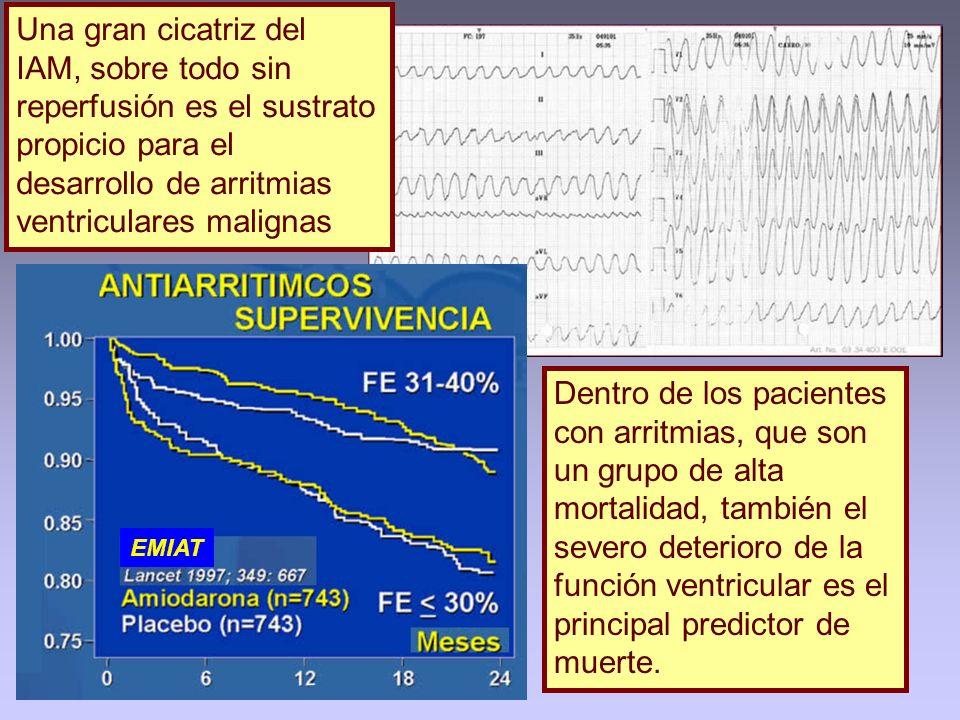 Una gran cicatriz del IAM, sobre todo sin reperfusión es el sustrato propicio para el desarrollo de arritmias ventriculares malignas Dentro de los pac