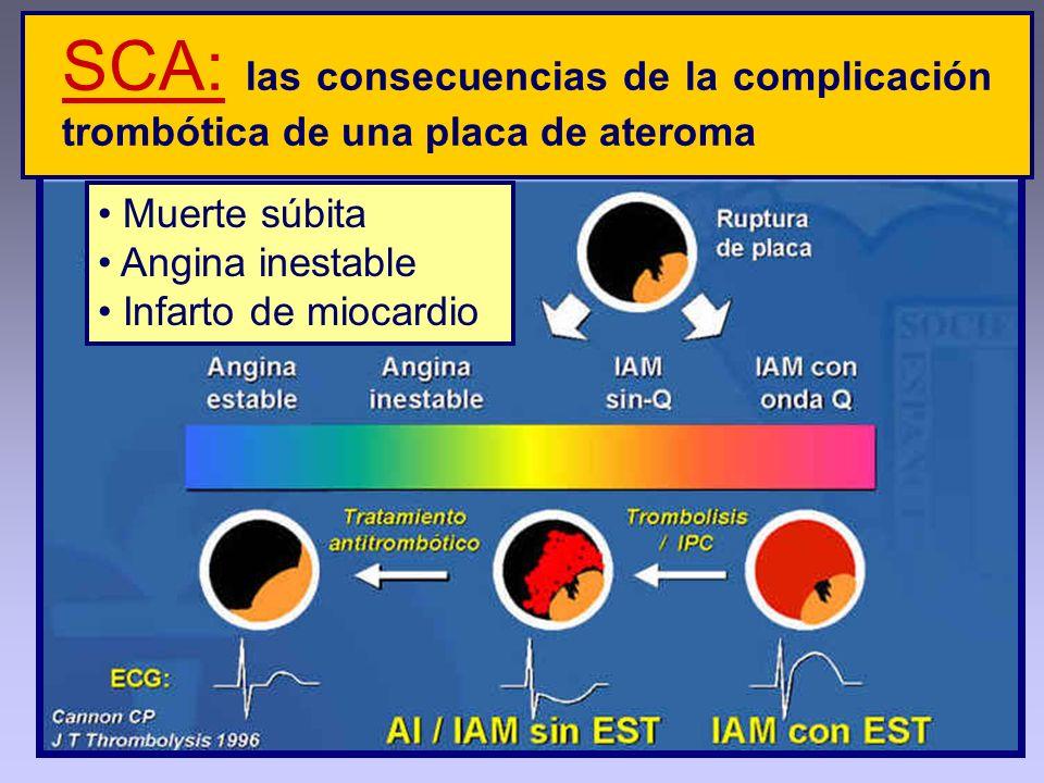 Muerte súbita Angina inestable Infarto de miocardio SCA: las consecuencias de la complicación trombótica de una placa de ateroma