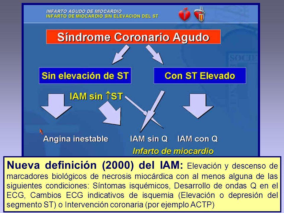 Nueva definición (2000) del IAM: Elevación y descenso de marcadores biológicos de necrosis miocárdica con al menos alguna de las siguientes condicione