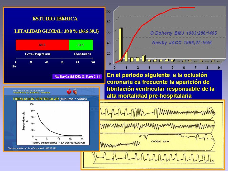 En el periodo siguiente a la oclusión coronaria es frecuente la aparición de fibrilación ventricular responsable de la alta mortalidad pre-hospitalari