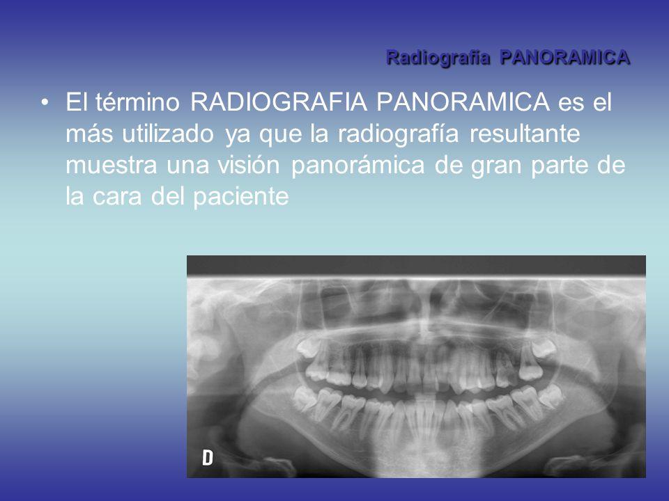 Radiografía PANORAMICA El término RADIOGRAFIA PANORAMICA es el más utilizado ya que la radiografía resultante muestra una visión panorámica de gran pa