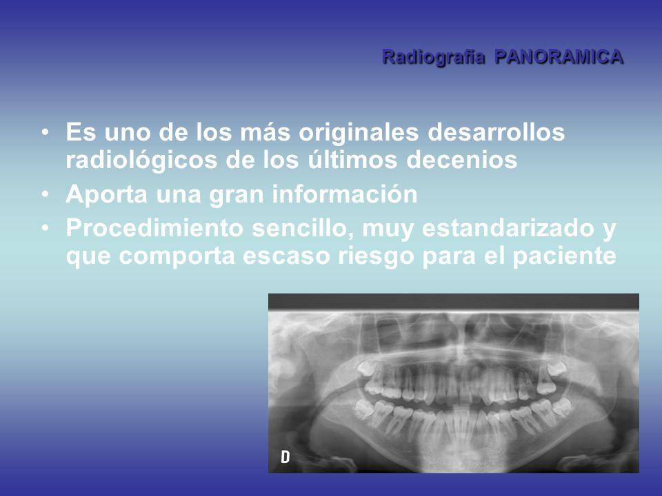 Radiografía PANORAMICA Es uno de los más originales desarrollos radiológicos de los últimos decenios Aporta una gran información Procedimiento sencill