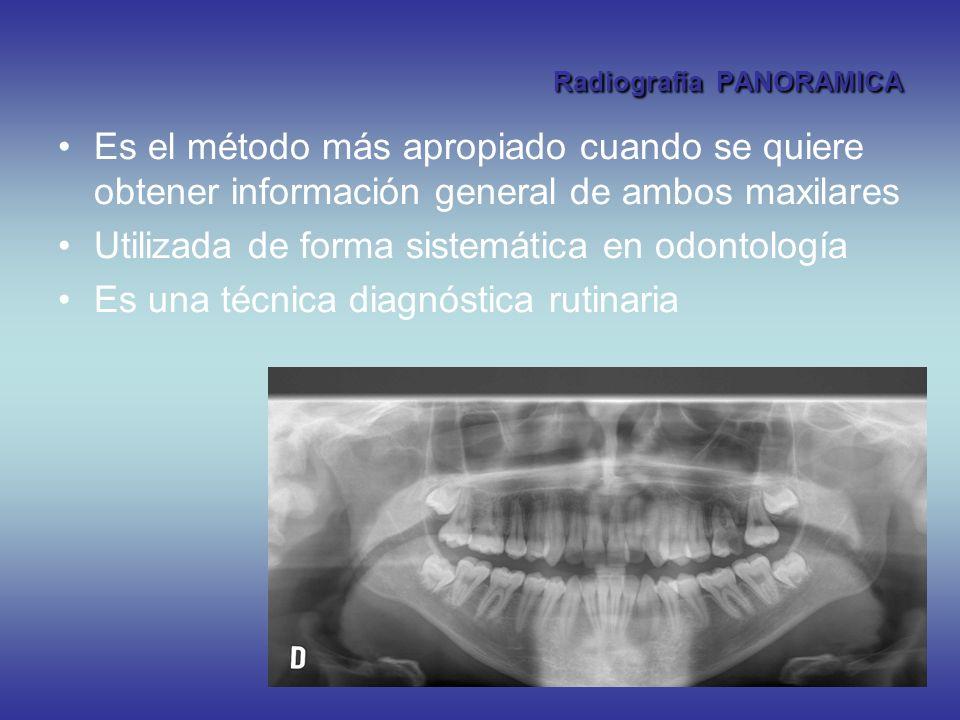 Radiografía PANORAMICA Es el método más apropiado cuando se quiere obtener información general de ambos maxilares Utilizada de forma sistemática en od