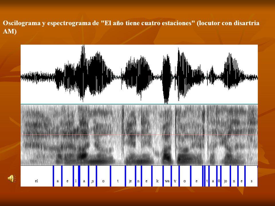 Oscilograma y espectrograma de