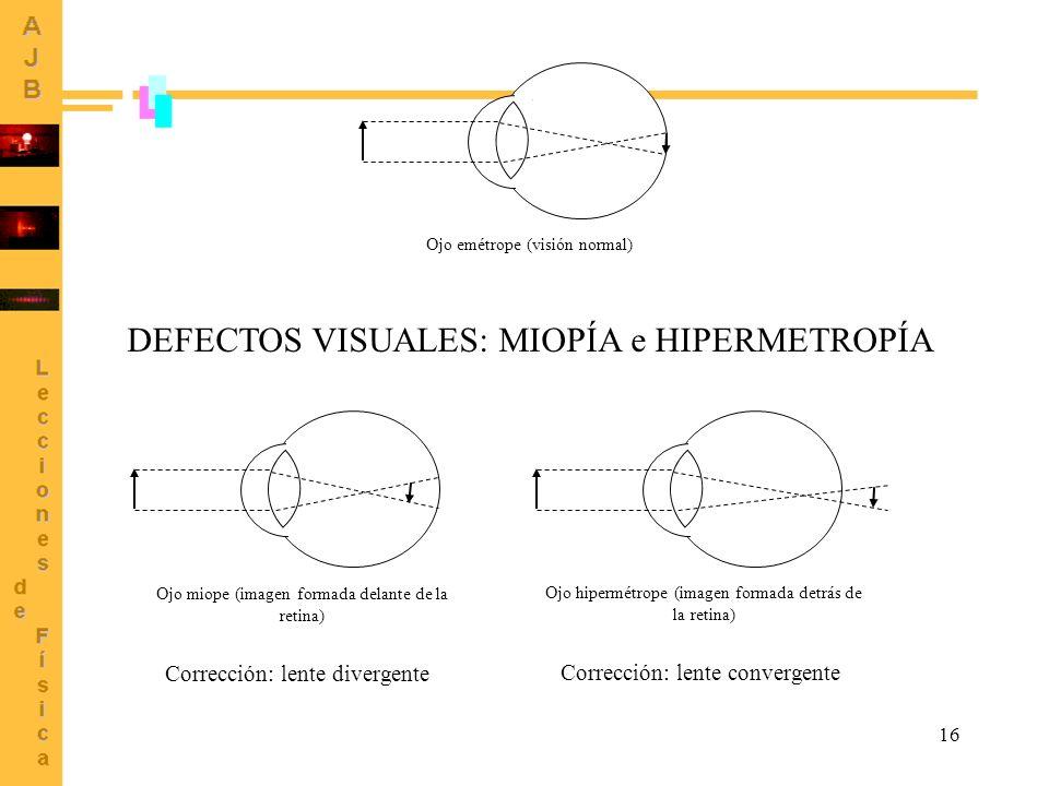 16 Ojo emétrope (visión normal) Ojo miope (imagen formada delante de la retina) Ojo hipermétrope (imagen formada detrás de la retina) DEFECTOS VISUALE
