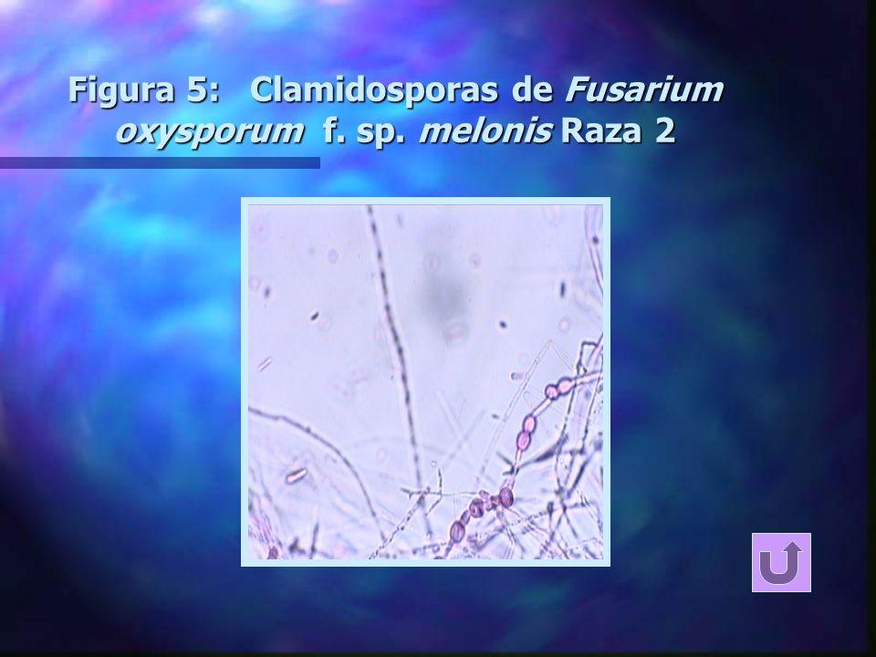 Método: Producción de inóculo n Se inoculan matraces con 100 gr.. de substrato compuesto por turba rubia:turba negra: perlita: vermiculita (61:24:7,5: