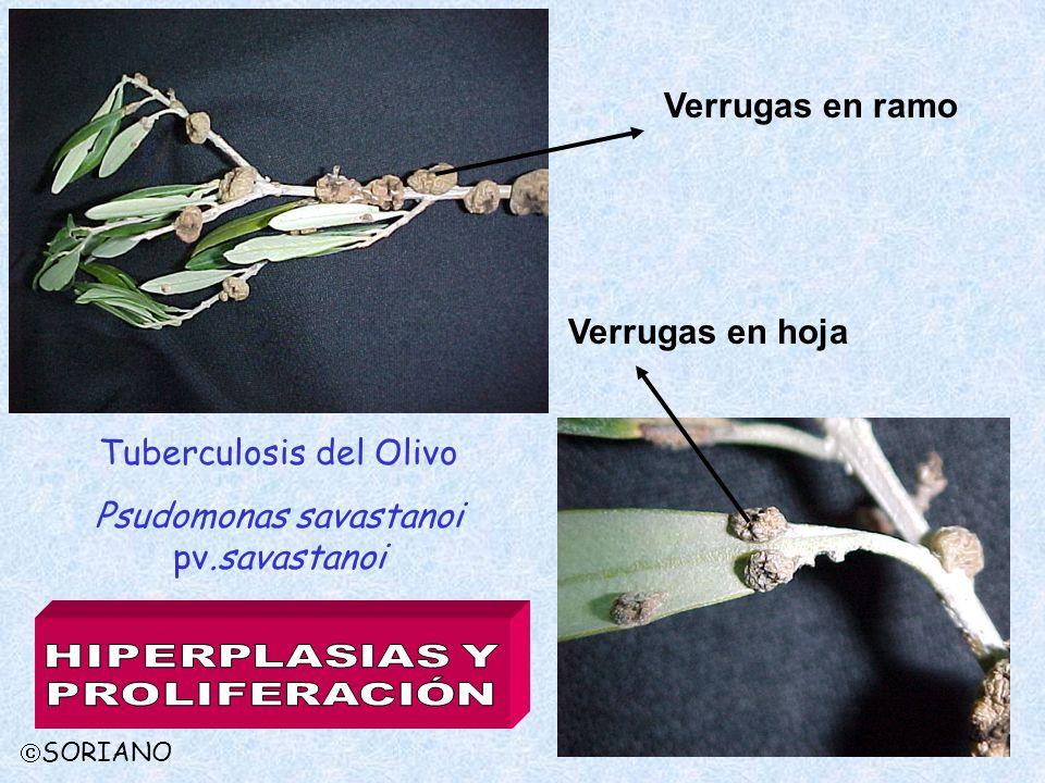 Tuberculosis del Olivo Psudomonas savastanoi pv.savastanoi Verrugas en ramo Verrugas en hoja