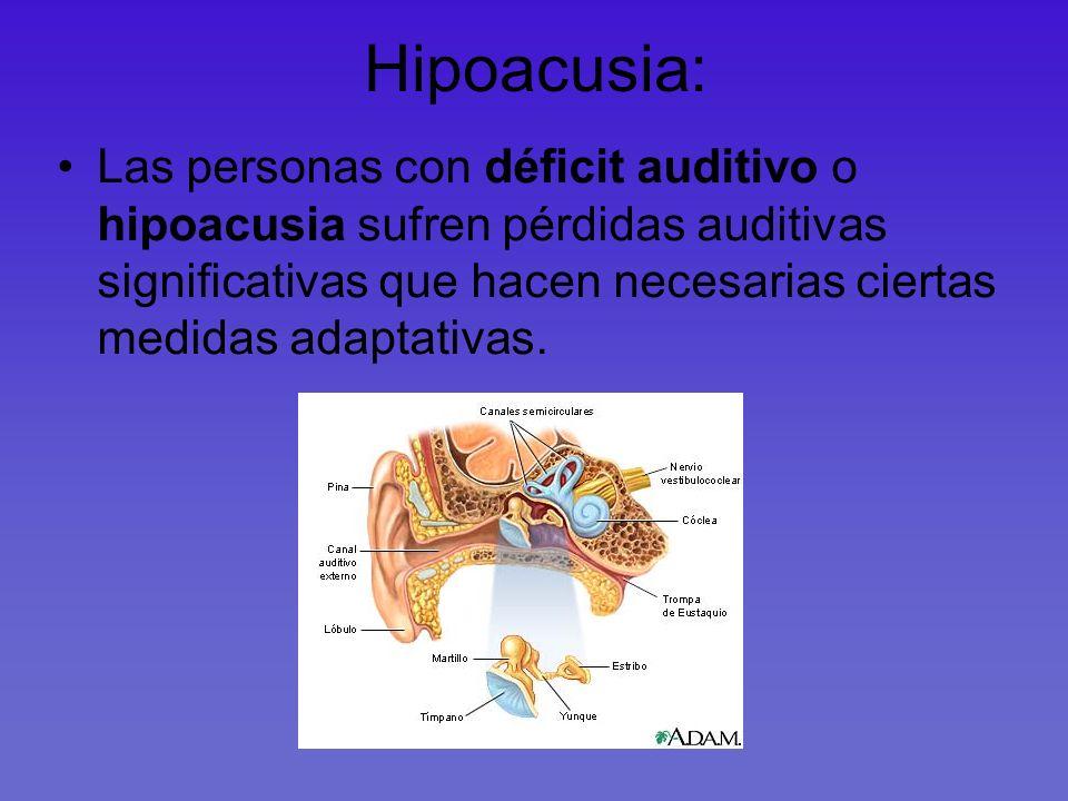 Tipos de sordera según la localización de la lesión Conductiva o de transmisión :la lesión se encuentra en el oído externo o medio Sensorial o de percepción: se encuentra en el oído interno o en la vía auditiva hacia el cerebro Sordera mixta: daños combinados de las dos anteriores.