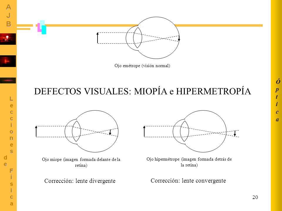 20 Ojo emétrope (visión normal) Ojo miope (imagen formada delante de la retina) Ojo hipermétrope (imagen formada detrás de la retina) DEFECTOS VISUALE