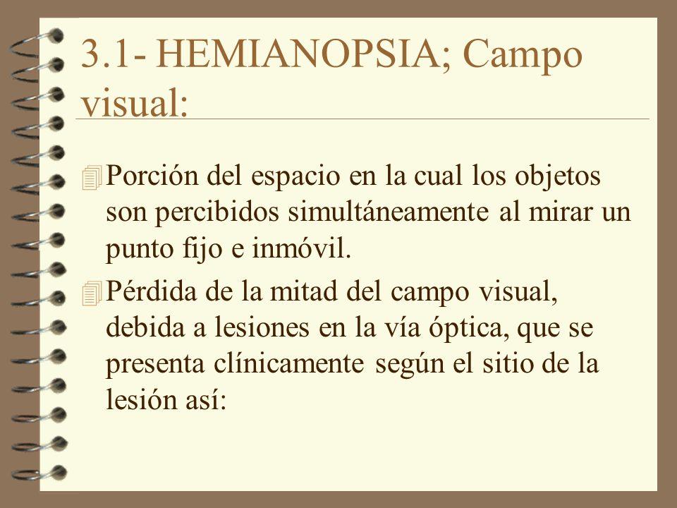 3.1- HEMIANOPSIA; Campo visual: 4 Porción del espacio en la cual los objetos son percibidos simultáneamente al mirar un punto fijo e inmóvil. Pérdida