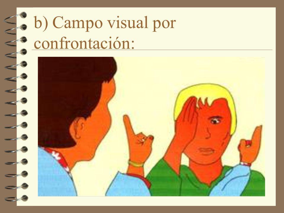 b) Campo visual por confrontación: