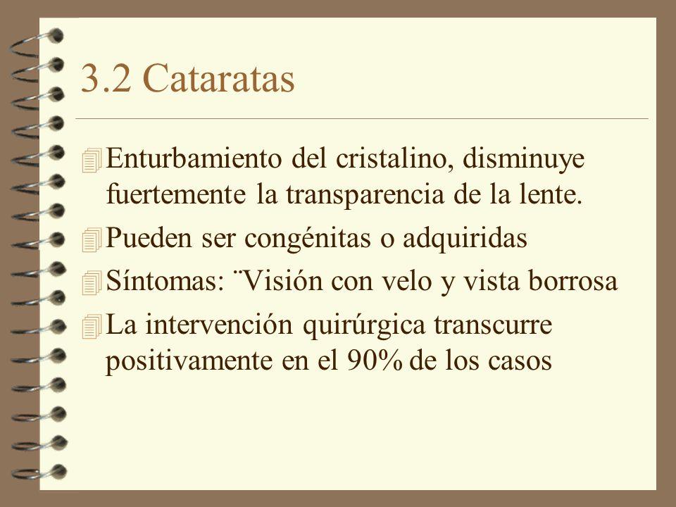 3.2 Cataratas 4 Enturbamiento del cristalino, disminuye fuertemente la transparencia de la lente. 4 Pueden ser congénitas o adquiridas 4 Síntomas: ¨Vi
