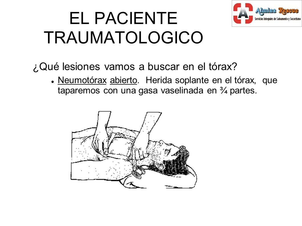 EL PACIENTE TRAUMATOLOGICO ¿Qué lesiones vamos a buscar en el tórax.
