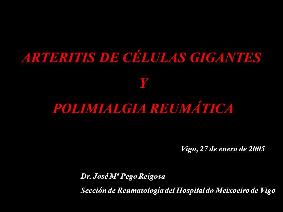 ARTERITIS DE CÉLULAS GIGANTES Y POLIMIALGIA REUMÁTICA Vigo, 27 de enero de 2005 Dr. José Mª Pego Reigosa Sección de Reumatología del Hospital do Meixo