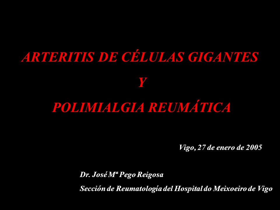 ARTERITIS DE CÉLULAS GIGANTES.- POLIMIALGIA REUMÁTICA TRATAMIENTO.- Efectos adversos CORTICOTERAPIA Diabetes mellitus Fracturas osteoporóticas Infecciones: candidiasis oral, herpes zoster, bacterianas,...