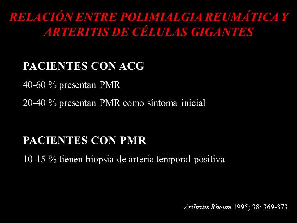 d RELACIÓN ENTRE POLIMIALGIA REUMÁTICA Y ARTERITIS DE CÉLULAS GIGANTES d PACIENTES CON ACG 40-60 % presentan PMR 20-40 % presentan PMR como síntoma in