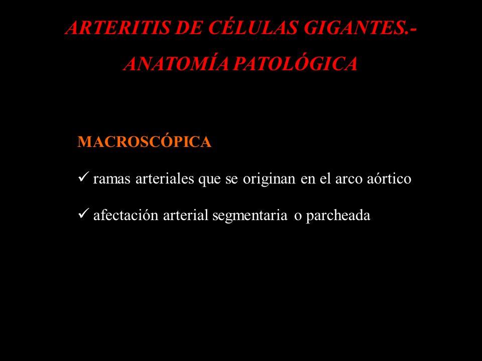 ARTERITIS DE CÉLULAS GIGANTES.- ANATOMÍA PATOLÓGICA MACROSCÓPICA ramas arteriales que se originan en el arco aórtico afectación arterial segmentaria o