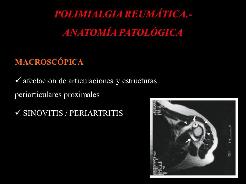 d POLIMIALGIA REUMÁTICA.- ANATOMÍA PATOLÓGICA MACROSCÓPICA afectación de articulaciones y estructuras periarticulares proximales SINOVITIS / PERIARTRI