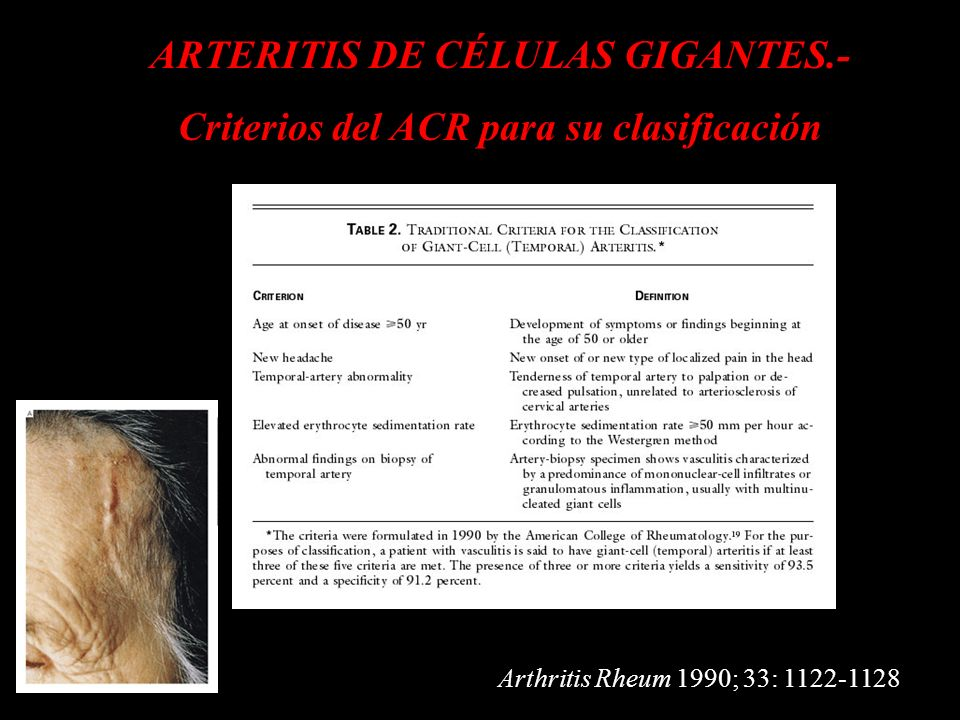 ARTERITIS DE CÉLULAS GIGANTES.- Criterios del ACR para su clasificación Arthritis Rheum 1990; 33: 1122-1128