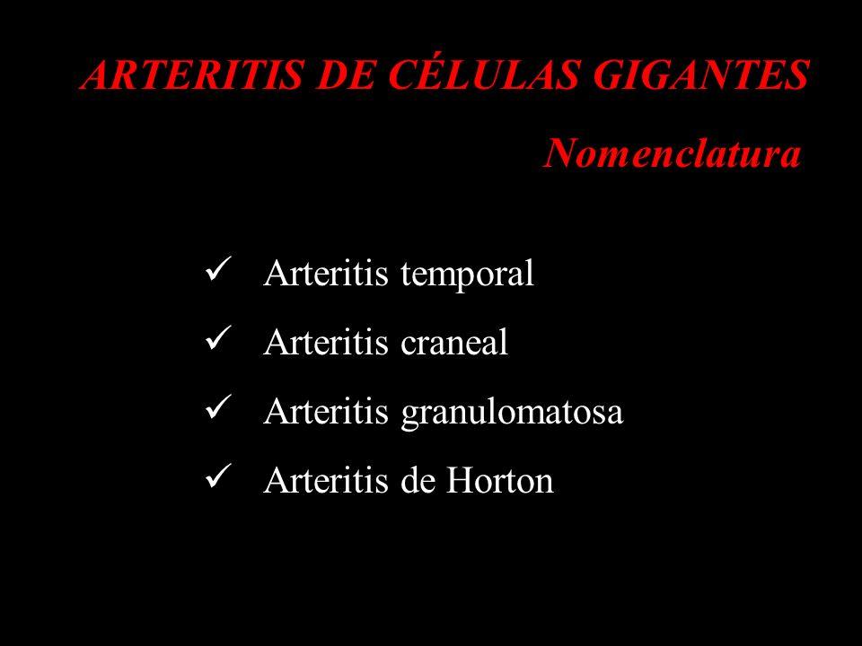 ARTERITIS DE CÉLULAS GIGANTES Nomenclatura Nombres y definiciones de las vasculitis adoptados por la Conferencia de Consenso de Chapel Hill sobre la nomenclatura de las vasculitis sistémicas d Arthritis Rheum 1994; 37: 187-192 VASCULITIS DE VASO GRANDE arteritis de células gigantes arteritis de Takayasu VASCULITIS DE VASO MEDIANO poliarteritis nodosa, enfermedad de Kawasaki VASCULITIS DE VASO PEQUEÑO granulomatosis de Wegener, síndrome de Churg Strauss, poliarteritis microscópica, púrpura de Henoch-Schönlein, vasculitis crioglobulinémica esencial, angeítis leucocitoclástica cutánea