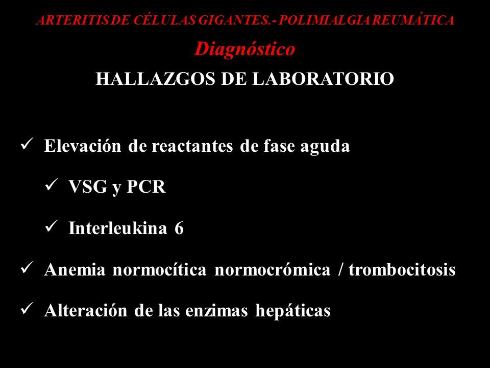 ARTERITIS DE CÉLULAS GIGANTES.- POLIMIALGIA REUMÁTICA Diagnóstico HALLAZGOS DE LABORATORIO Elevación de reactantes de fase aguda VSG y PCR Interleukin