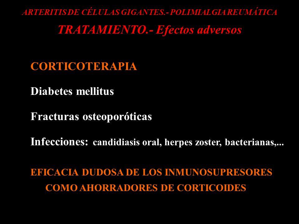ARTERITIS DE CÉLULAS GIGANTES.- POLIMIALGIA REUMÁTICA TRATAMIENTO.- Efectos adversos CORTICOTERAPIA Diabetes mellitus Fracturas osteoporóticas Infecci