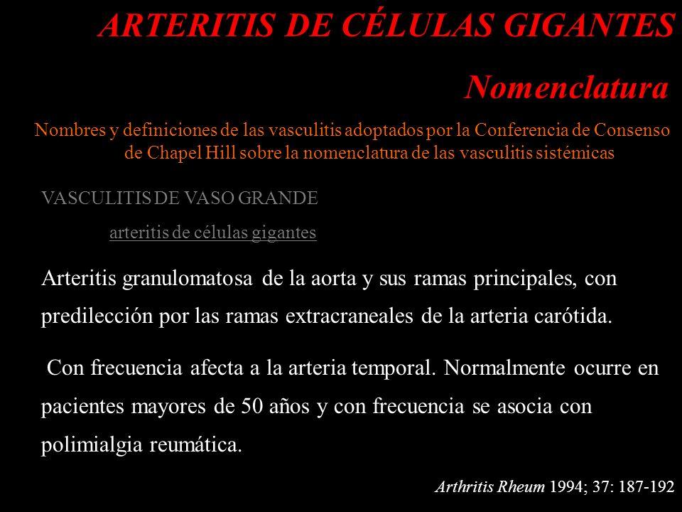 ARTERITIS DE CÉLULAS GIGANTES.- POLIMIALGIA REUMÁTICA Diagnóstico ESTUDIO HISTOLÓGICO BIOPSIA DE ARTERIA TEMPORAL Uni o bilateral Si no hay riesgo: pre-corticoterapia