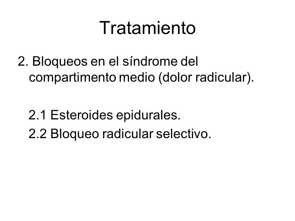 Tratamiento 2. Bloqueos en el síndrome del compartimento medio (dolor radicular). 2.1 Esteroides epidurales. 2.2 Bloqueo radicular selectivo.