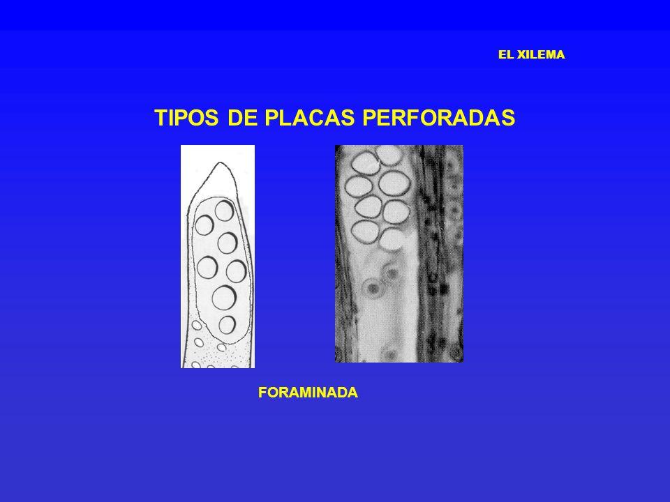 EL XILEMA TIPOS DE PLACAS PERFORADAS FORAMINADA