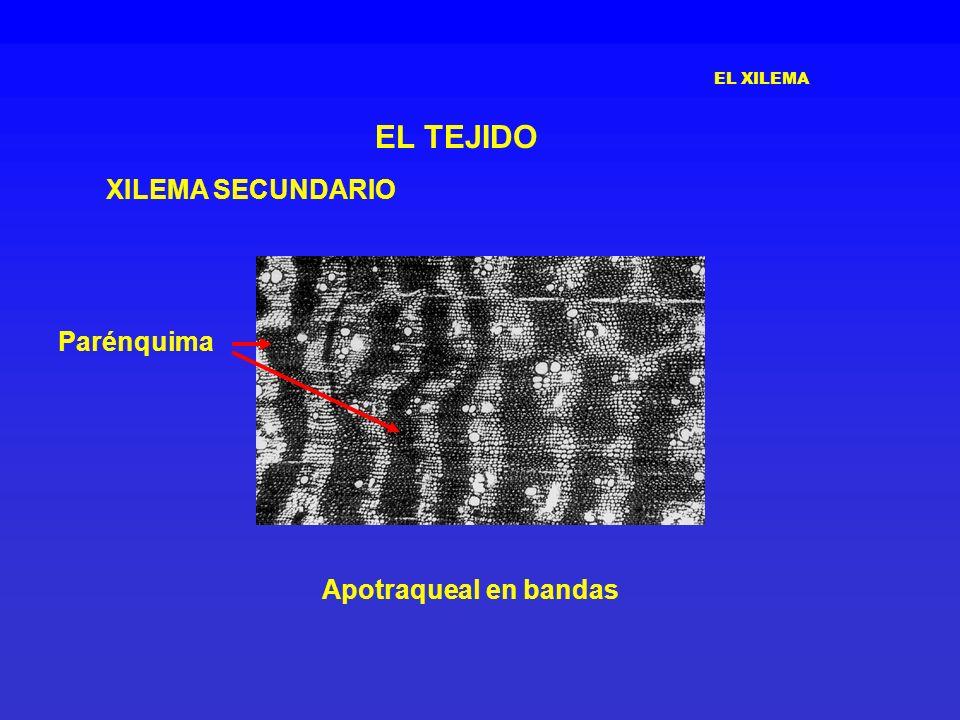 EL XILEMA EL TEJIDO XILEMA SECUNDARIO Apotraqueal en bandas Parénquima
