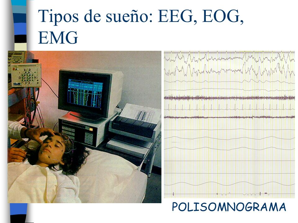 Tipos de sueño: EEG, EOG, EMG POLISOMNOGRAMA